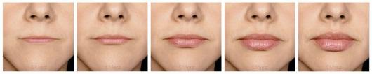Lèvres – Face