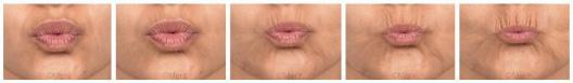 Lèvres – Rides péribuccale dynamiques