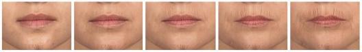 Lèvres – Rides péribuccale statiques