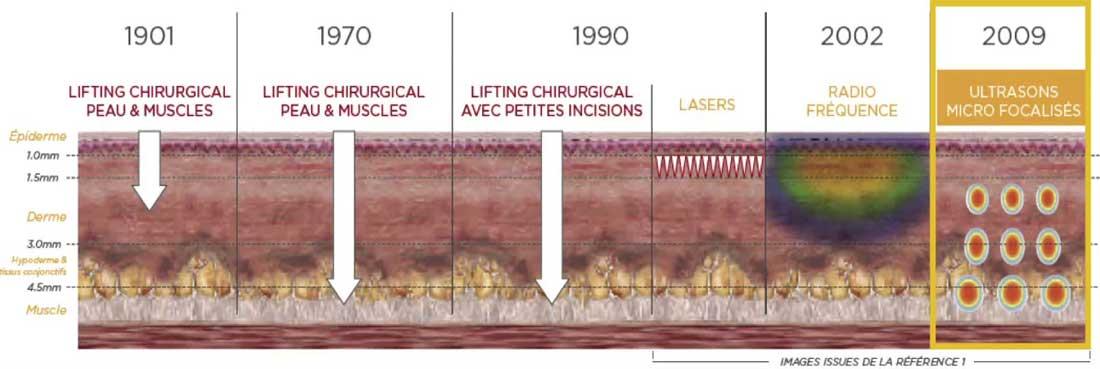 Ultherapie Paris Dr Cozanet