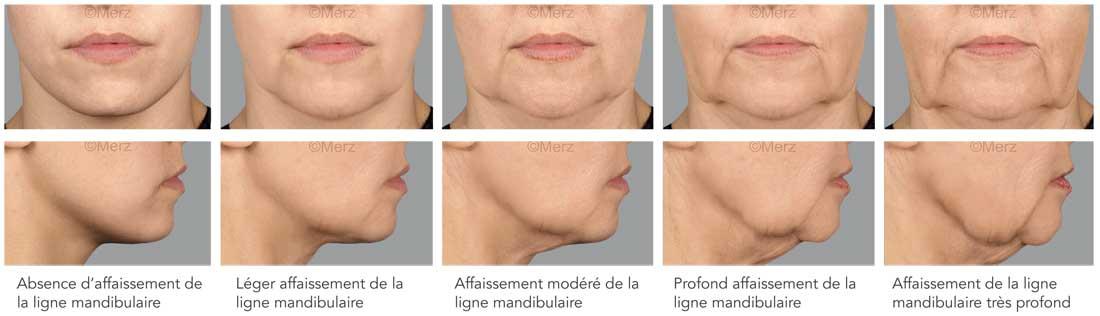 ovale du visage Dr Cozanet Paris